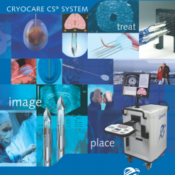 CryoSurgery / CryoAblation